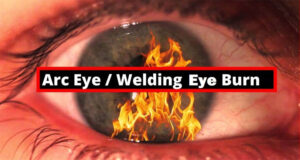 Welding Eyes Burn: Exact Causes and Possible Home Remedies